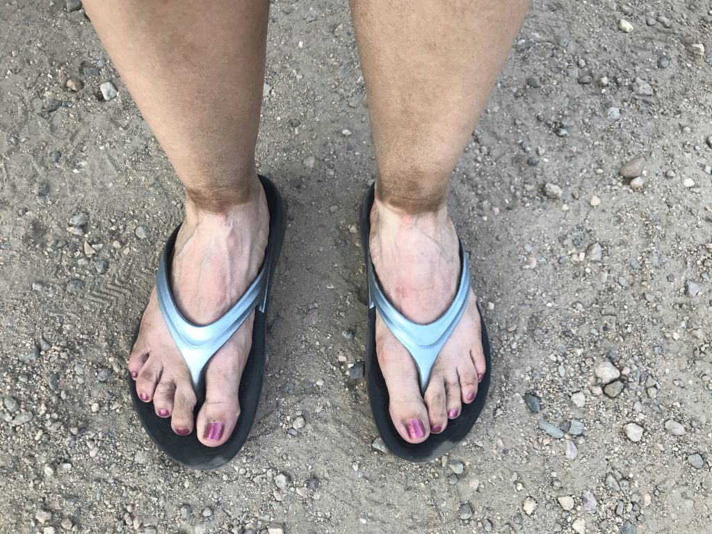 Dirty feet after hiking in Rocky Mountain National Park